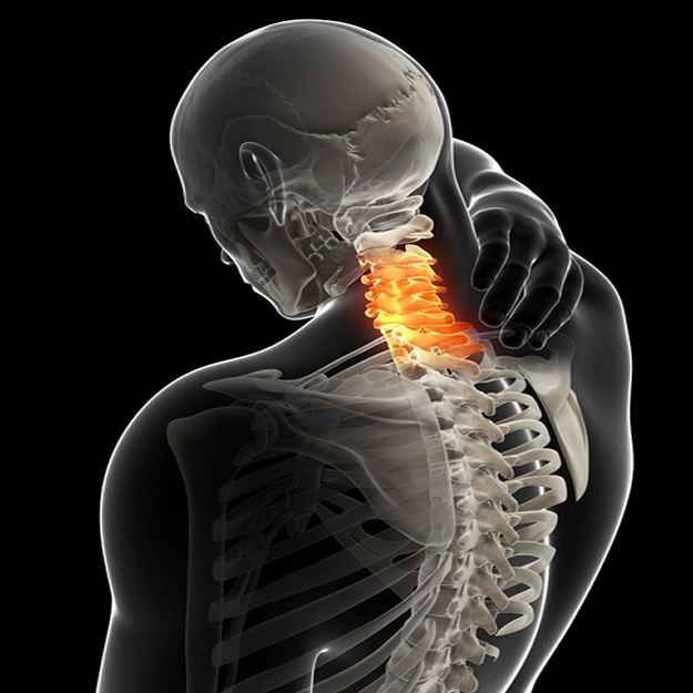 颈椎病专业介绍