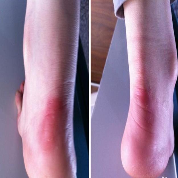 足跟痛专业介绍