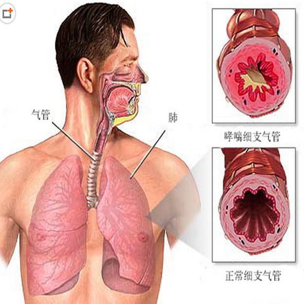 石家庄过敏性哮喘