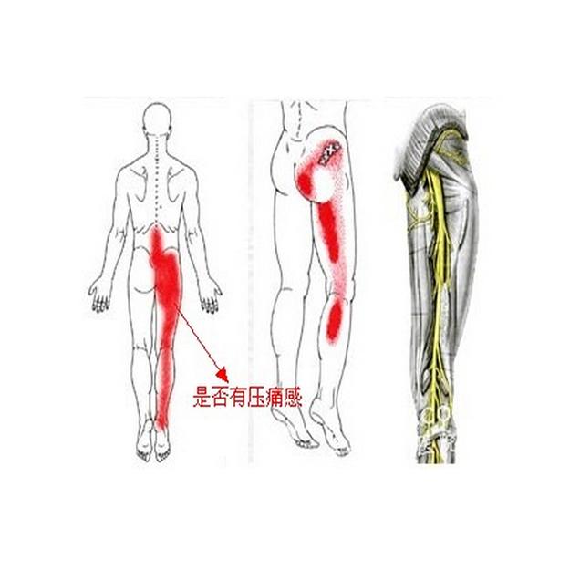 坐骨神经痛专业介绍