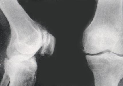 石家庄骨质增生