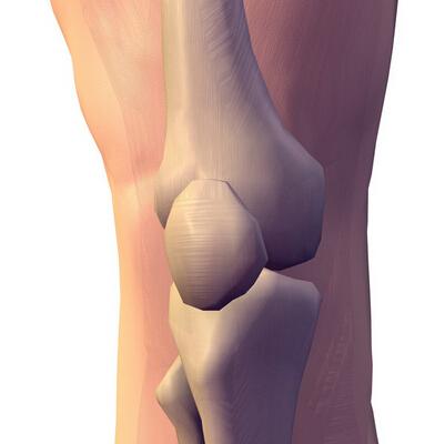 膝关节痛专业介绍