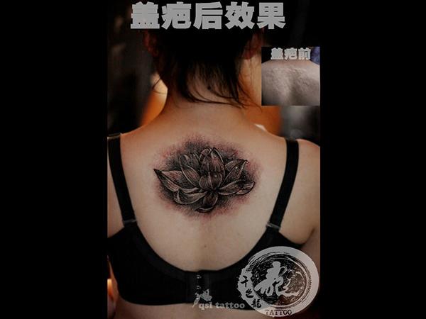 贵阳纹身修改