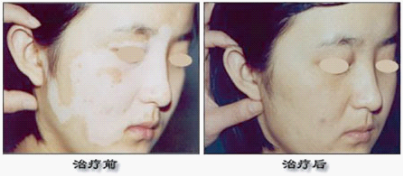 中医治疗皮肤病