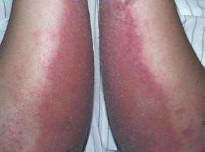 季节性皮炎治疗