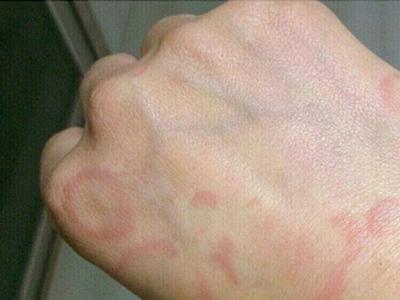 皮肤病的防治