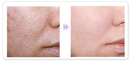 面部皮光治疗