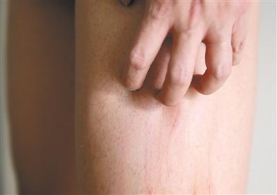 治疗皮肤瘙痒