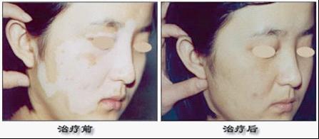 皮肤病治疗