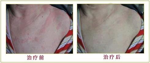 【厂家】引起白癜风3大要素 皮肤病治疗阶段有几步