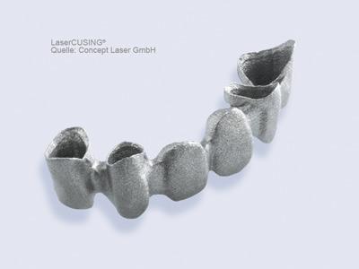 3D打印义齿