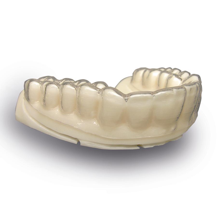 正畸-隐形牙套