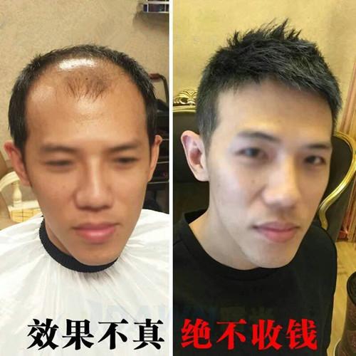 男士织发补发
