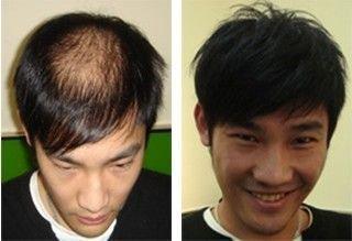 织发补发需要多少钱