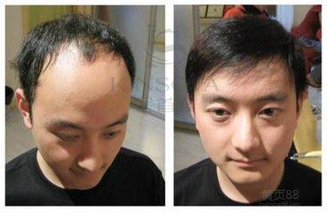 中年男假发