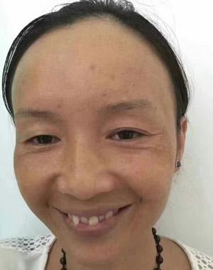 斑美拉使用前的黄脸婆