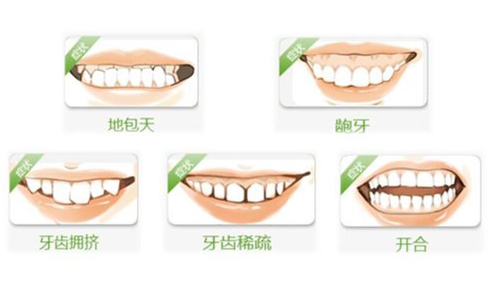 南通牙齿矫正医院
