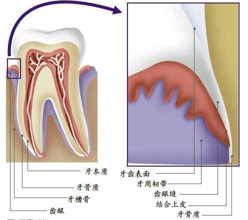 南通牙龈切除手术