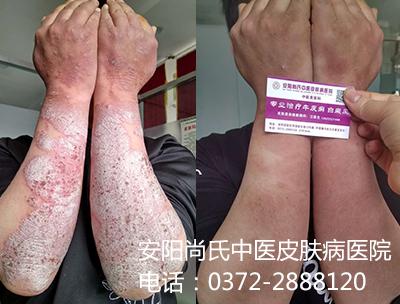 中医牛皮癣治疗