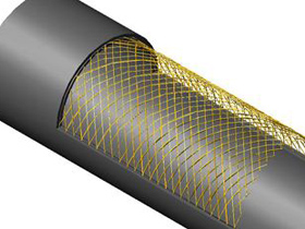 普洱钢丝网骨架复合管