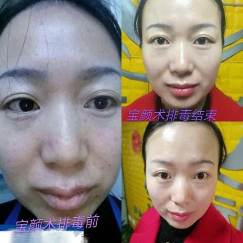 武汉宝颜术面部排毒