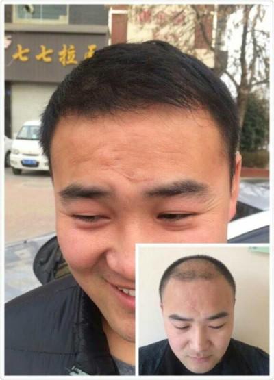 头发加密种植