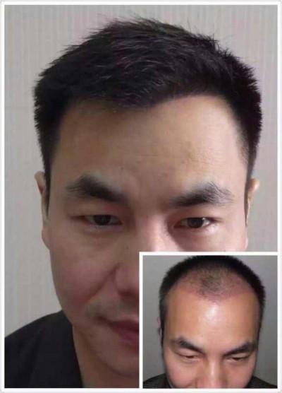 脂溢性脱发植发多少钱