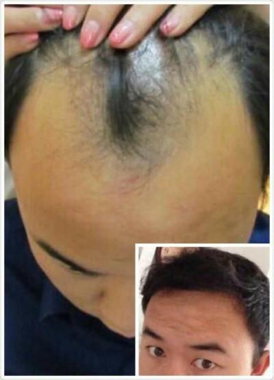 植发技术哪家好