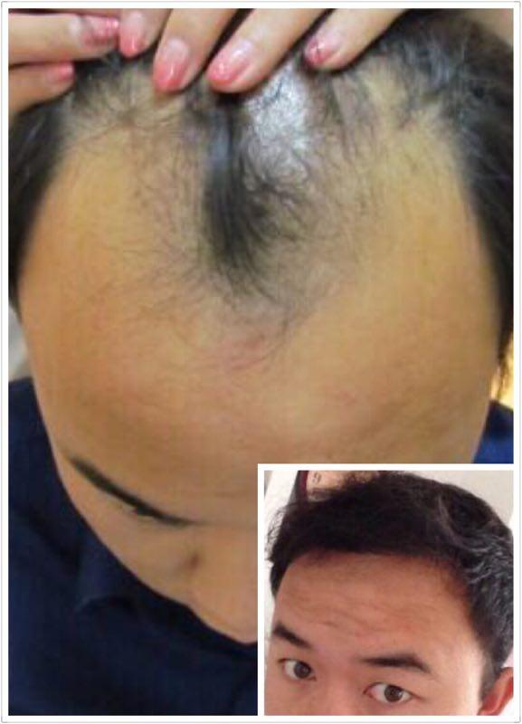 头发种植费用多少