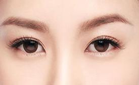天津双眼皮手术