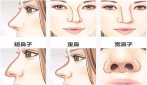 天津线雕隆鼻