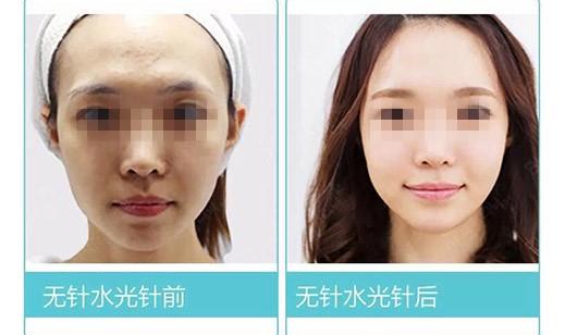 半永久皮肤护理