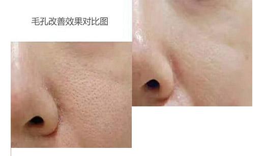皮肤清洁护理