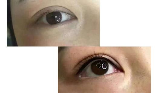 美瞳线前后对比