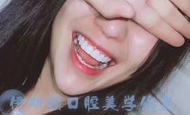 江苏牙齿美容修复培训
