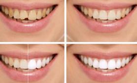 上海牙齿美容修复培训