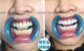 牙齿美容修复培训学校