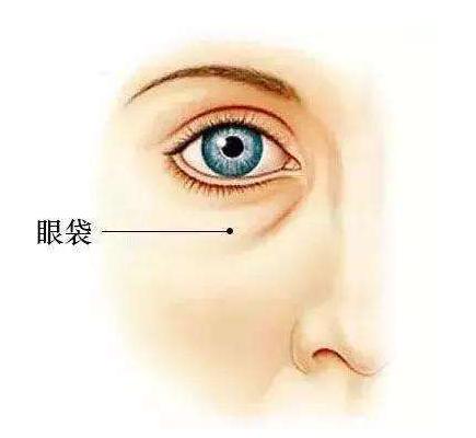 眼袋下垂矯正術