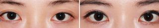 全切雙眼皮的過程
