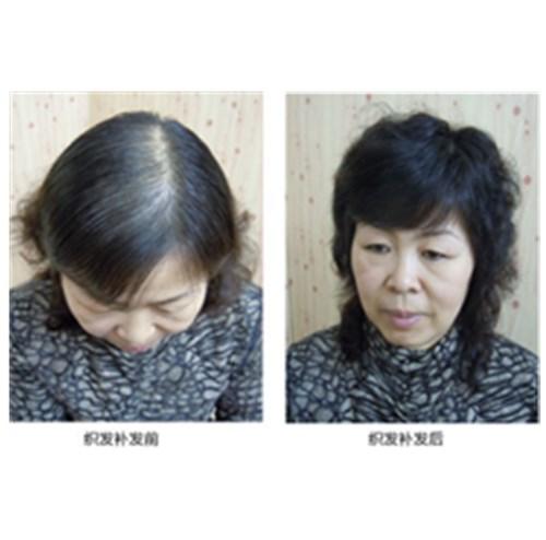 女士头发稀少案例