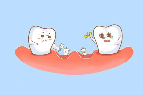 重庆牙周病治疗