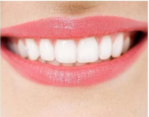 重庆美白牙齿